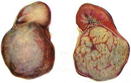 Лечение опухоли в почке