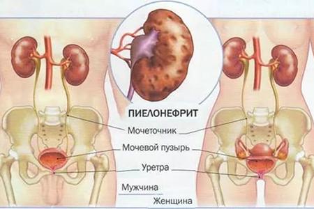Пиелонефрит почек, лечение