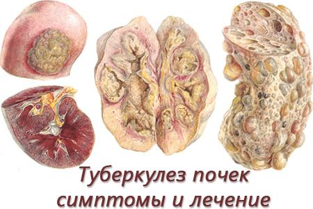 Туберкулез почек симптомы и лечение, диагностика