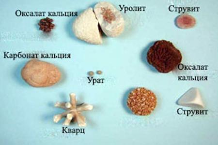 Соли в почках, виды образований